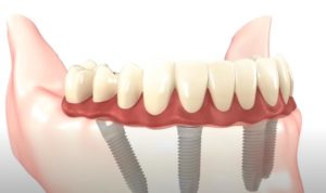 Протезирование зубов в Тюмени импланты
