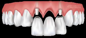мостовое протезирование зубов в Тюмени