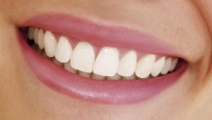 улыбка после лечения зубов в Тюмени