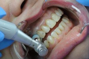 профилактика в лечении зубов