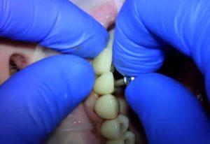 протезирование зубов - имплантантная ортопедия