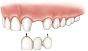 качественное протезирование зубов в Тюмени