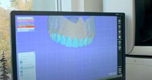 Протезирование зубов - цены в Тюмени недорого