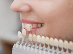 Протезирование зубов цены Тюмень