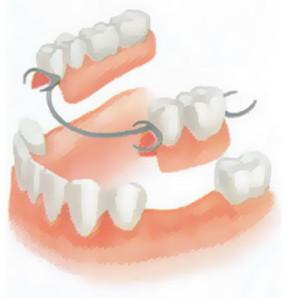 Протезирование зубов цены в Тюмени