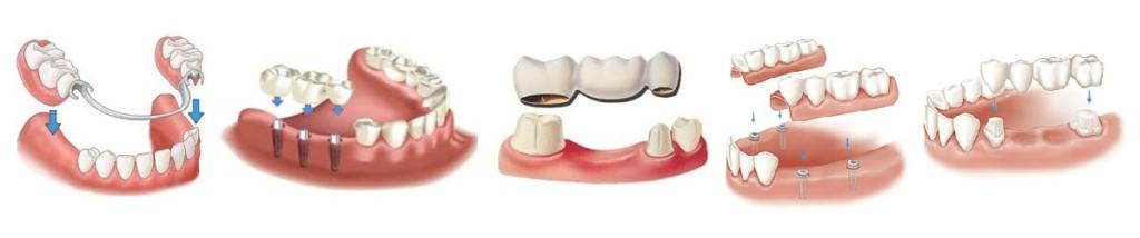 протезирование зубов акция в Тюмени