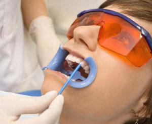 glubokoe-ftorirovanie-zubov