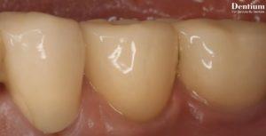 Зубные импланты Dentium Тюмень