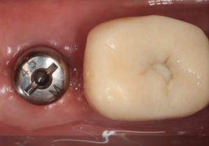 Зубные импланты «Dentium»