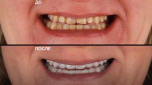 protezirovanie-stomatologiia-del`ta-stom (1)