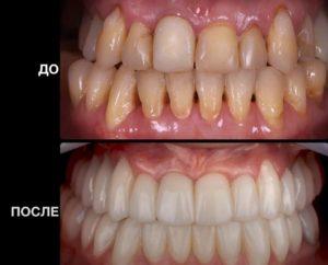 protezirovanie-stomatologiia-del`ta-stom (2)