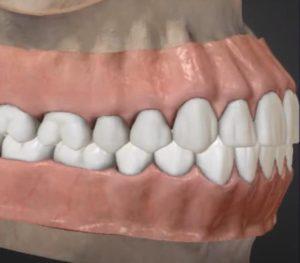 naimenovanie_zubov