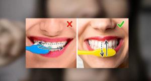 Правильное движение зубной щеткой